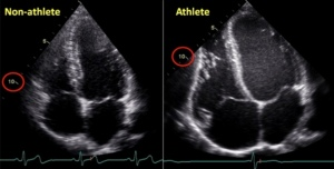 ultrasound+athlete+heart